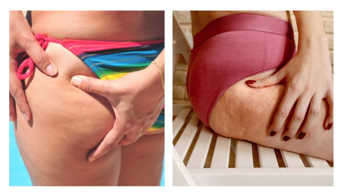 ritenzione idrica e cellulite: le differenze