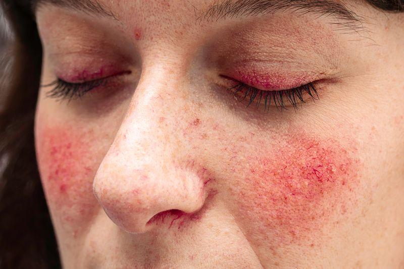 La rosacea è un'infiammazione cronica tipica della pelle sensibile