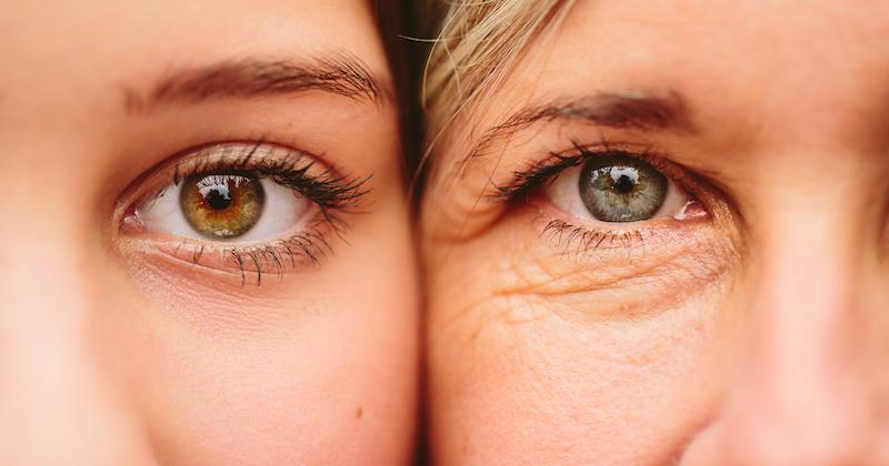 La differenza fra occhiaie e borse e il ruolo chiave del microcircolo